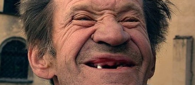 banguelo-dentista